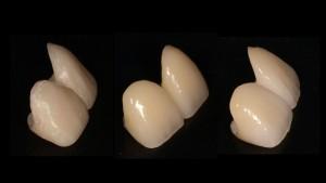 2012.1.20 Cental incisor.024
